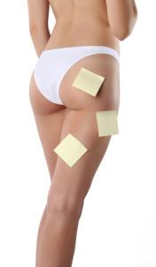 Cellulite behandeln leicht gemacht
